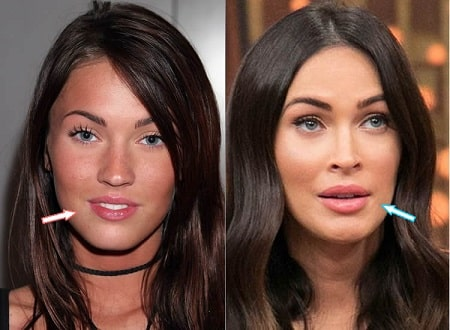 A picture of Megan Fox before (left) and after (right).