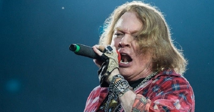 GnR Singer Axl Rose's Plastic Surgery Didn't Go Well