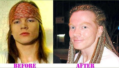 A picture of Axl Rose before (left) and after (right) disappearing from industry.