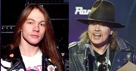 A picture of Axl Rose before (left) and after (right).