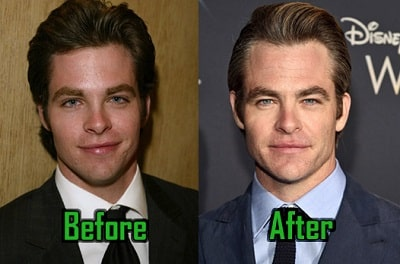 A picture of Chris Pine before (left) and after (right).