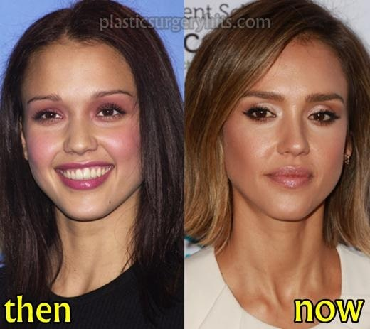 A picture of Jessica Alba before (left) and after (right).