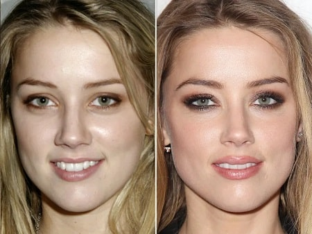 A picture of Amber Heard before (left) and after (right).