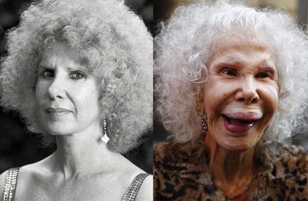 Cayetana Fitz before and after picture.