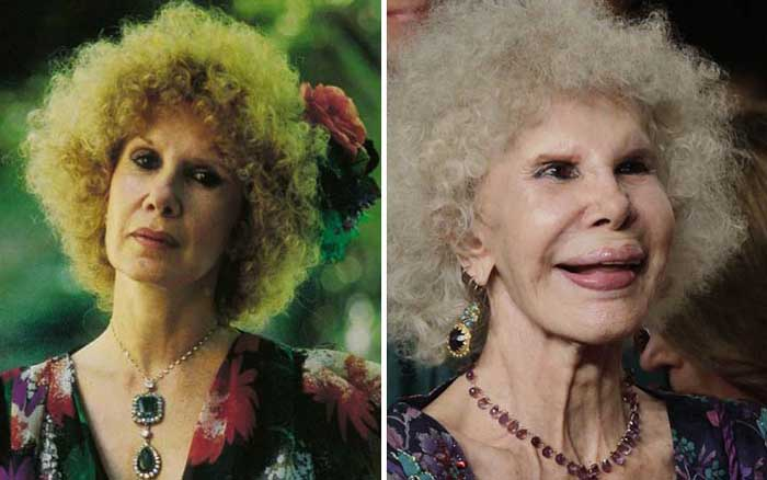 A picture of Cayetana Fitz before and after.