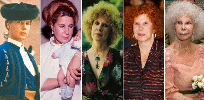 Late Duchess of Alba Cayetana Fitz-James Stuart Plastic Surgery and Disaster