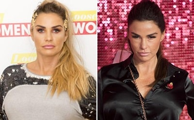 A picture of Katie Price before (left) and after (right).
