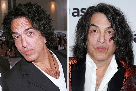 A picture of Paul Stanley before (left) and after (right).