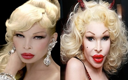 A picture of Amanda Lepore before (left) and after (right) cheekbone augmentation.