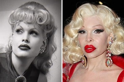A picture of Amanda Lepore before (left) and after (right).