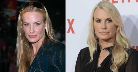 A picture of Daryl Hannah before (left) and after (right).