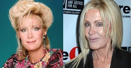 A picture of Joan Van Ark before (left) and after (right).