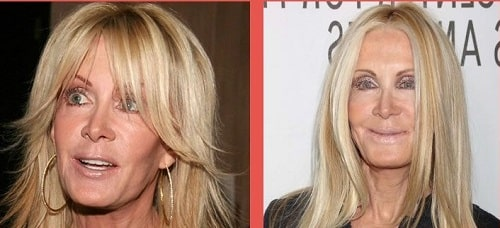 A picture of Joan Van Ark from past (left) and present (right).