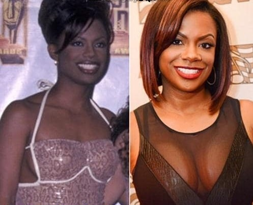 A picture of Kandi Burruss before and after breast implants.