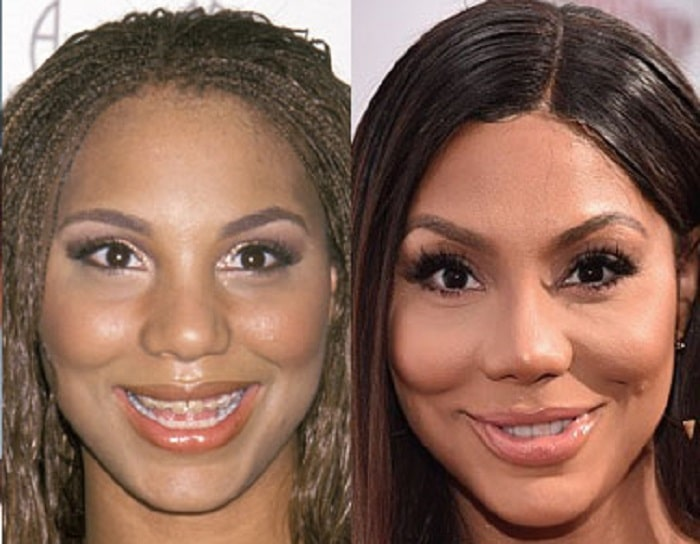 The alleged before and after pictures of Tamar's lips surgery.