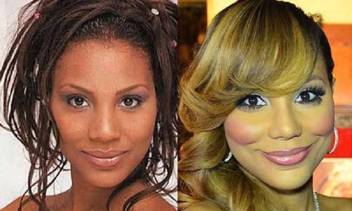 The alleged before and after pictures of Tamar's contour surgery.