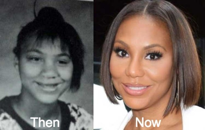 Tamar before and after her nose surgery.