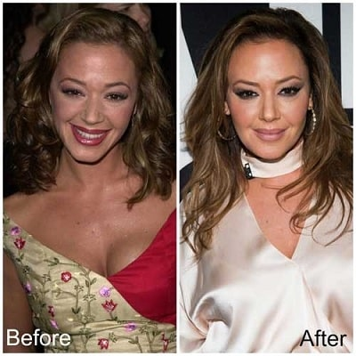 A picture of Leah Remini before (left) and after (right).