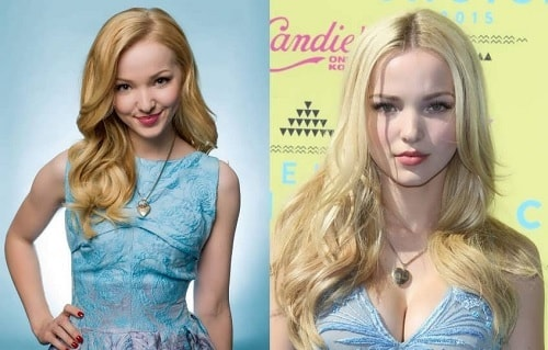A picture of Dove Cameron before (left) and after (right).