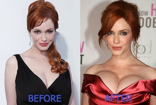 A picture of Christina Hendricks before (left) and after (right).