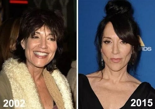 A picture of Katey Sagal before (left) and after (right).