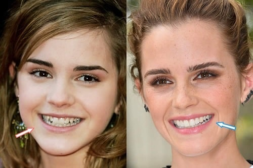 A picture of Emma Watson before and after.