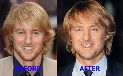 A picture of There is some change in Owen Wilson's nose before and after plastic surgery