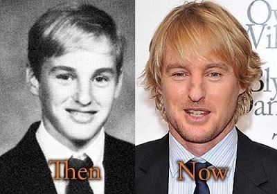 A picture of Owen Wilson before and after.