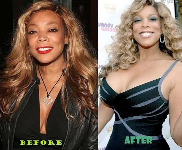 A picture of Wendy Williams before and after breast implants.