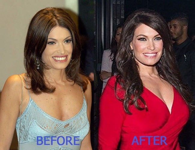 Kimberly Guilfoyle before and after plastic surgery.