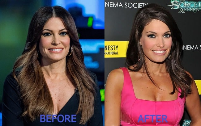 Face of Kimberly Guilfoyle before and after renovation.
