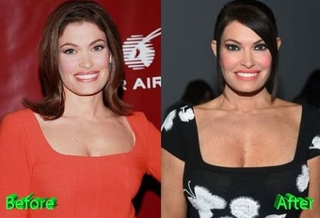 Smile of Kimberly Guilfoyle before and after oral surgery.