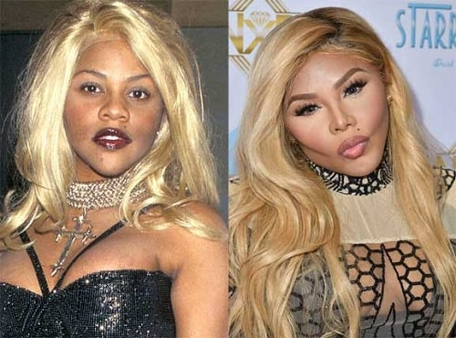 A picture of Lil' Kim before (left) and after (right).