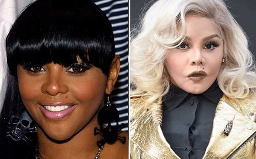 A picture of Lil' Kim before and after.