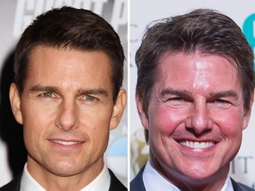 A picture of Tom Cruise before (left) and after (right).