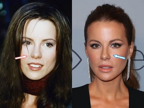 A picture of Kate Beckinsale before (left) and after (right).