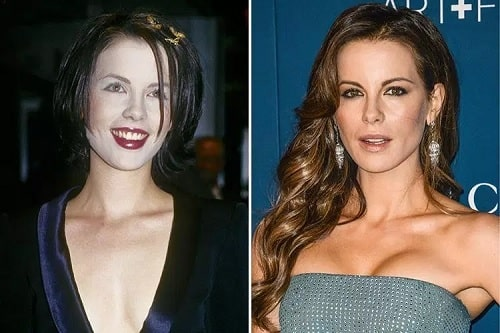 A picture of Kate Beckinsale before (left) and after (right.