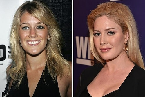 A picture of Heidi Montag before (left) and after (right).