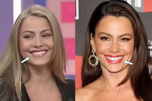 A picture of Sofia Vergara Before (left) and After (right).