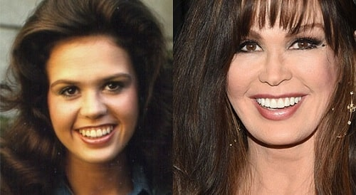 A picture of Marie Osmond before (left) and after (right).