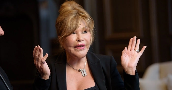 Jocelyn Wildenstein Plastic Surgery Was A Disaster | Surgery Fails