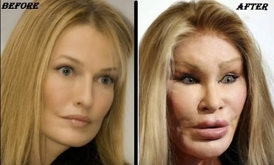 A picture of Jocelyn Wildenstein before (left) and after (right).