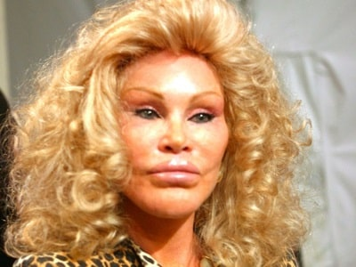 A picture of Jocelyn Wildenstein with her big lips.