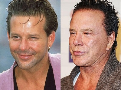 A picture of Mickey Rourke before (left) and after (right).