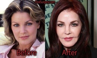 A picture of Priscilla Presley before (left) and after (right).