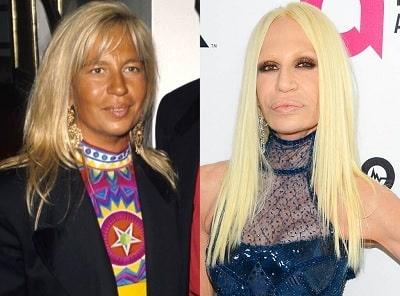 A picture of Donatella Versace before (left) and after (right).