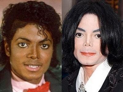 Late Pop King Michael Jackson's All Plastic Surgeries ...