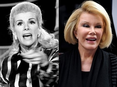 A picture of Joan Rivers before (left) and after (right) eye lift.