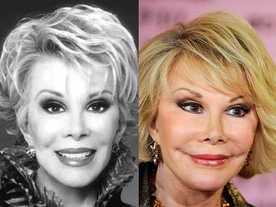 A picture of Joan Rivers before (left) and after (right).