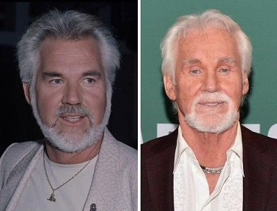 A picture of Kenny Rogers before (left) and after (right) eyelids surgery.